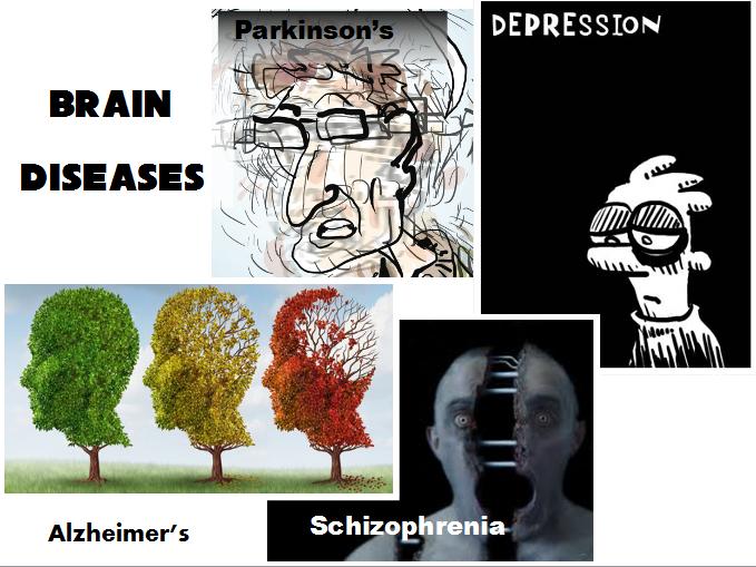 neuro-lunch-brain-diseases